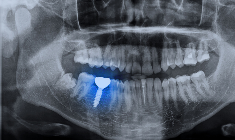 oral xray to show implant