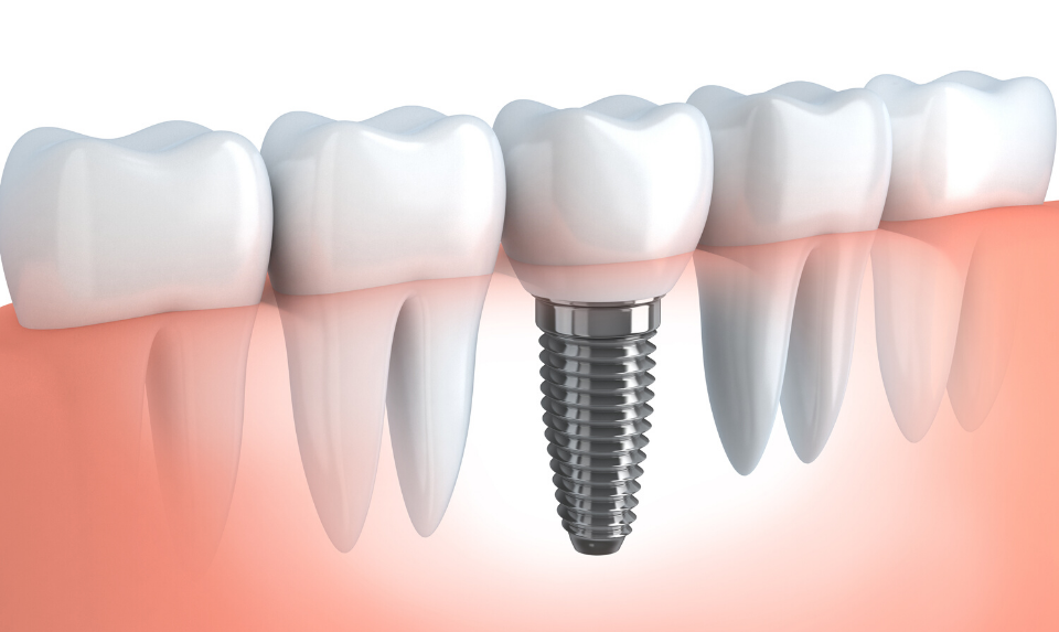 illustration of teeth implants