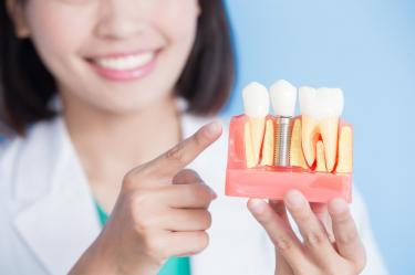 dentist showing teeth implants