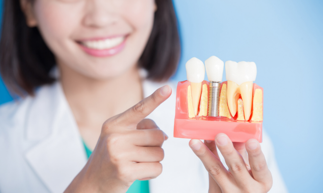 Understanding Teeth Implants