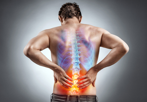 Treating Sciatica with Physical Therapy